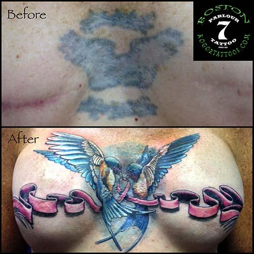Boston Rogoz Tattoo : Tattoos : Coverup : Mastectomy scar cover-up ...